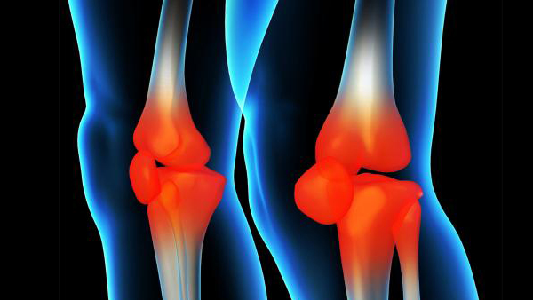 骨性膝关节炎