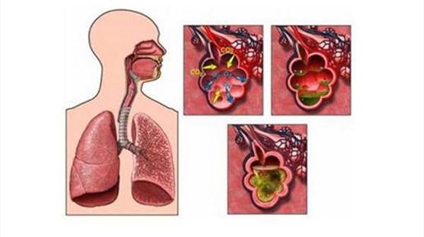 患了支气管哮喘要注意什么?成都养老院一暄康养向您分享(一)-哮喘2