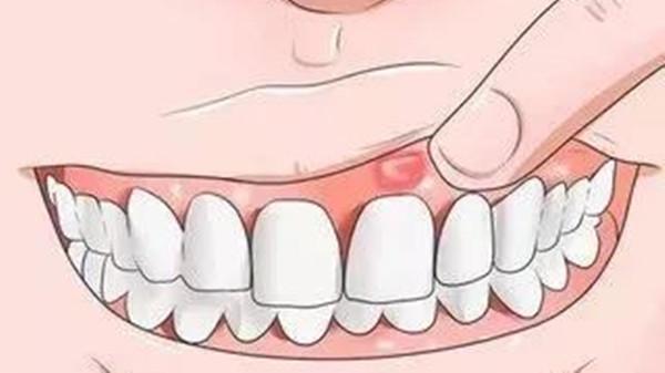 冬季嘴唇起泡,成都金牛区养老院一暄康养告诉你原因可能是这些-口腔溃疡