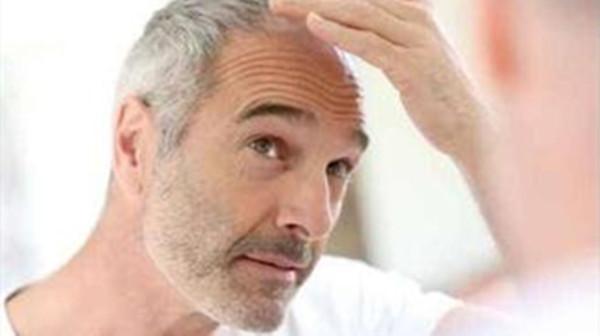 预防头发变白的方法,成都养老院一暄康养为您分享(二)-白发