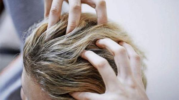 预防头发变白的方法,成都养老院一暄康养为您分享(二)-按摩头皮