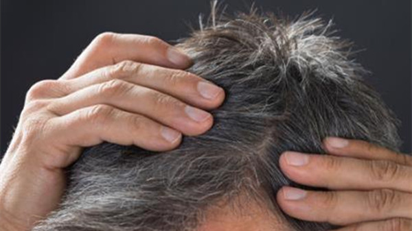 预防头发变白的方法,成都养老院一暄康养为您分享(一)-白头发