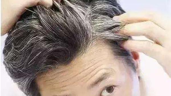 头发变白的原因,成都金牛区养老院一暄康养告诉你-白头发2