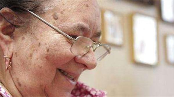 成都养老院一暄康养介绍老年斑是怎么形成的(一)-老年斑