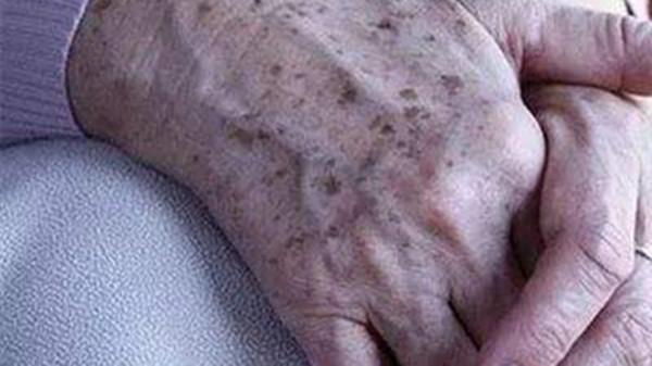 成都金牛区养老院一暄康养介绍老年斑是怎么形成的(一)-老年斑