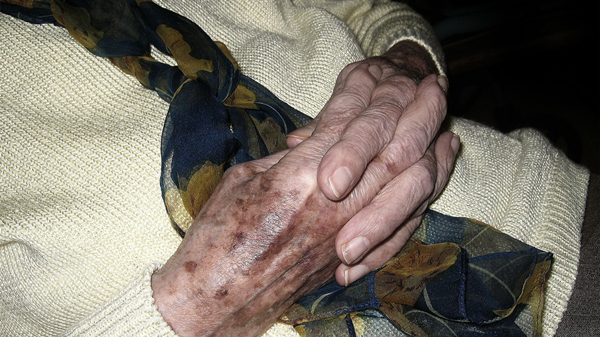 成都养老院一暄康养介绍老年斑是怎么形成的(一)-老年斑1
