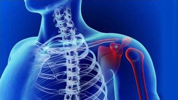 一暄康养成都中医理疗中心主治项目之一——肩周炎-插图1