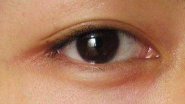 成都养老院一暄康养提醒在家也能自己做体检(4)-眼皮2