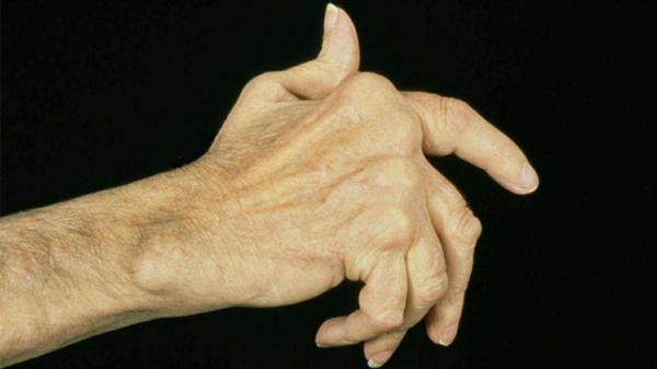 成都养老院一暄康养提醒清明时节五大疾病高发(二)-预防类风湿病1