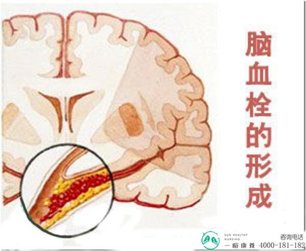 成都养老院脑血栓的形成