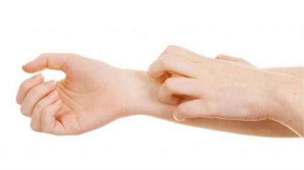 成都养老院经验雨季老年人慎防五种病——防皮肤病
