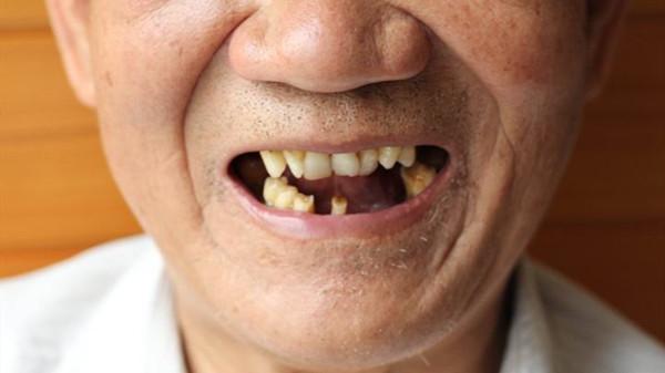 牙齿残根危害大,成都养老院一暄康养告诫大家早处理(三)1