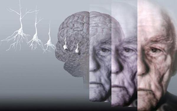 四川养老院一暄康养分享阿尔茨海默症的居家护理建议1
