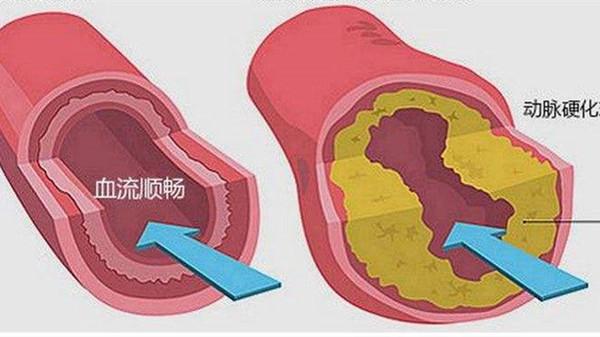 如何改善动脉硬化,成都金牛区养老院一暄康养为您介绍-动脉硬化