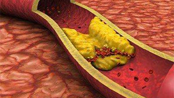 如何改善动脉硬化,成都养老院一暄康养为您介绍-动脉硬化