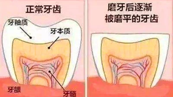 成都好的养老院-一暄康养分享晚上睡觉磨牙是什么原因(二)-磨牙1