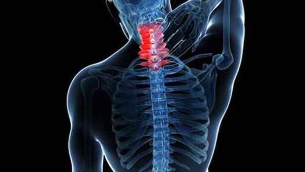 一暄康养成都中医理疗中心主治项目之一——颈椎病-插图2