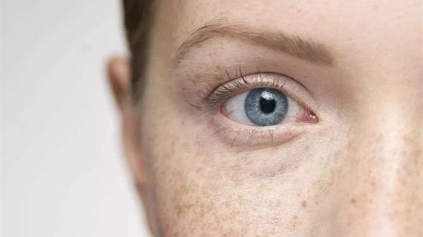 淡化色斑,成都金牛区养老院表示重在预防