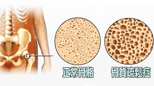 成都好的养老院一暄康养提醒高血脂的危害(一)-骨质疏松